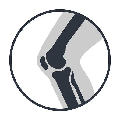 Penyakit Patellofemoral Pain Syndrome Pada Manusia Pengertian Patellofemoral Pain Syndrome Patellofemoral pain syndrome (sindrom nyeri tempurung lutut) adalah nyeri di bagian bawah atau sekitar patellae karena perubahan sendi patellofemoral-femora. Patella adalah bagian tulang kecil yang berlokasi di lutut, sebelum sendi lutut. Peran patellae adalah sebagai pendukung kaki untuk bergerak dan berdiri dengan megurangi tekanan pada sendi lutut serta tulang rawan yang membungkus tulang pada sendi.  Nyeri patellofemoral dapat mempengaruhi salah satu atau kedua lutut. Beberapa olahraga seperti sepakbola, basket, tenis, atau maraton bisa memperburuk masalah lutut. Berlari di atas permukaan yang kasar atau berolahraga di permukaan yang berbeda bisa menyebabkan penyakit ini. Perlu untuk membedakan antara nyeri patellofemoral dan patellar tendinitis karena mereka memiliki gejala yang hampir serupa.  Tanda dan Gejala Patellofemoral Pain Syndrome Nyeri patellofemoral biasanya menyebabkan sakit ringan namun terus-menerus pada lutut ketika terus meregangkan otot, nyeri bisa memburuk jika lutut tertekan. Contohnya, naik turun tangga, berlari, atau posisi berdiri tertentu (dalam Kung Fu). Ketika lutut ditekuk dalam waktu lama, misalnya duduk saat menonton film atau berada di dalam kereta api, dapat menyebabkan nyeri.  Lutut bisa nyeri jika berjalan di permukaan yang kasar atau tidak rata, seolah-olah merasa tersangkut ketika berlutut. Rasa tidak nyaman, bunyi retak, atau nyeri bisa muncul. Nyeri patellofemoral dan patellar tendinitis hampir sama. Namun, patellar tendinitis tidak menyebabkan nyeri di kedua sisi atau secara langsung pada lutut, nyeri biasanya muncul dari dalam sendi. Nyeri patellofemoral terjadi pada semua area sendi.  Penyebab Patellofemoral Pain Syndrome Penyebab pastinya masih belum jelas, namun dokter beranggapan penyebab utamanya adalah benturan keras pada sendi lutut, tulang rawan dan ligamen yang tertekan yang dapat menyebabkan nyeri dan degenerasi. Benturan mu