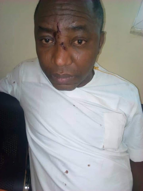 Omoyele Sowore's Injured Face After Being Arrested by Security Operatives In Abuja