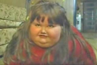 Η μεταμόρφωση της 8χρονης που ζύγιζε 190 κιλά! BINTEO