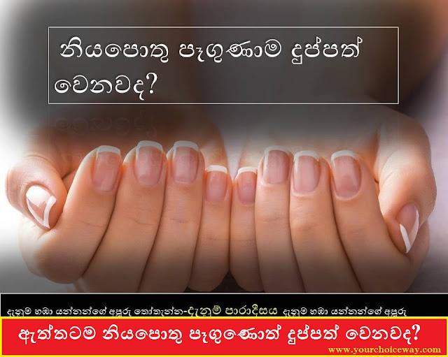 ඇත්තටම නියපොතු පෑගුණොත් දුප්පත් වෙනවද? ( Do You Really Get Poor If Your Nails Are Trampled? )