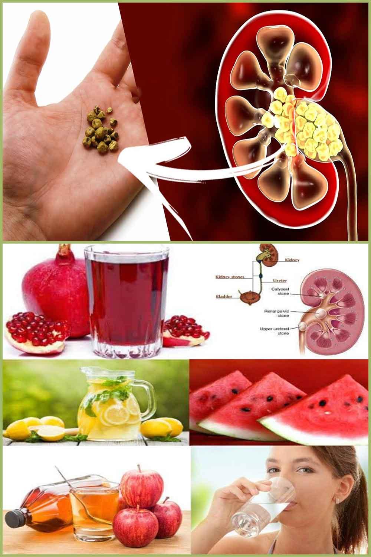 Remèdes naturels pour prévenir et traiter les calculs rénaux