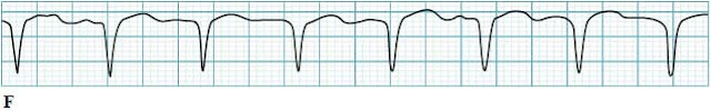 Atrial flutter with aberrant conduction ECG