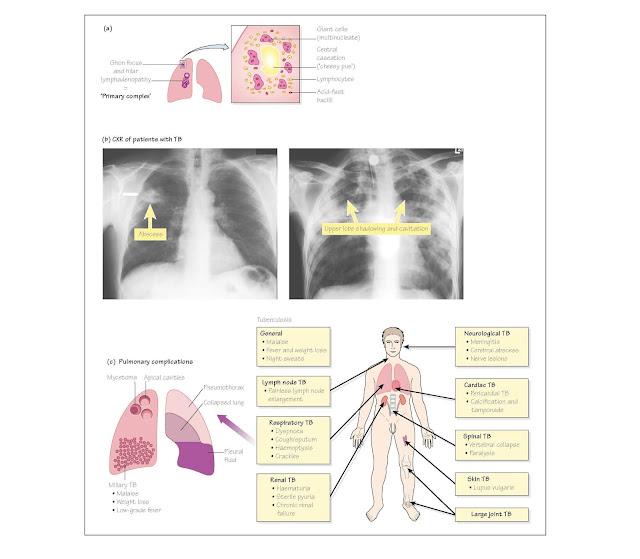 Pulmonary Tuberculosis, erythema nodosum, bronchiectasis