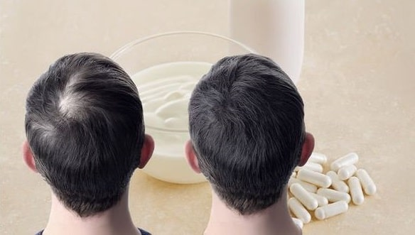 types of probiotics good for hair loss prevention baldness treatment