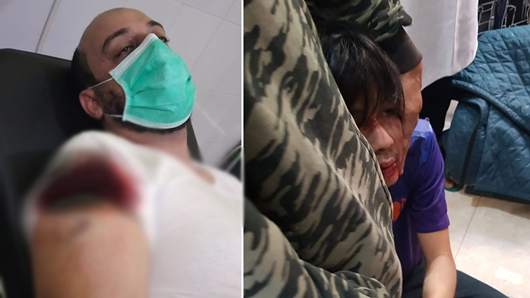 Syekh Moh Ali Jaber Ditusuk Pria Tak Dikenal di Lampung
