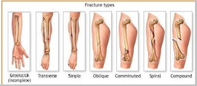 Fraktura (patah tulang) - berbagaireviews.com