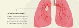 Wajib Diketahui! Diagnosa dan Pengobatan Untuk Penderita Penyakit Bronkitis