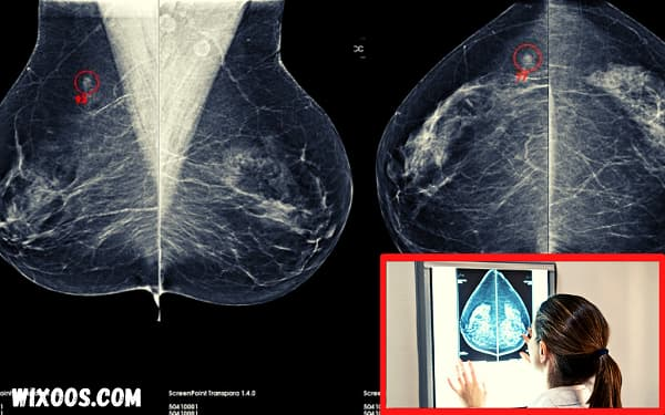 Artificial intelligence in mammography: breast cancer detection