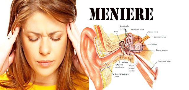 Panduan Seorang Farmasi Untuk Penyakit Meniere meniere syndrom  diet vertigo  meniere adalah  meniere disease adalah  meniere disease pdf  meniere syndrome adalah  sindrom meniere adalah  oriflame  farmasi maskara  farmsi  oriflame katalok  e farmasi  web farmasi  jurnal farmasi