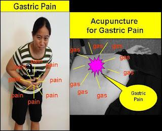 Tcm News Best Tcm Physicians For Gastritis Bloatedness