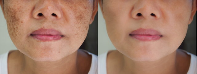 What Medical Treatment can Get you rid of Melasma?