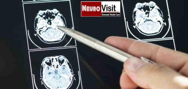 افضل ماهومعروف عن امراض المخ و الاعصاب في 2019 - اعراض