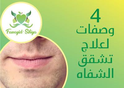 4 وصفات تفيد في علاج تشقق الشفاه.