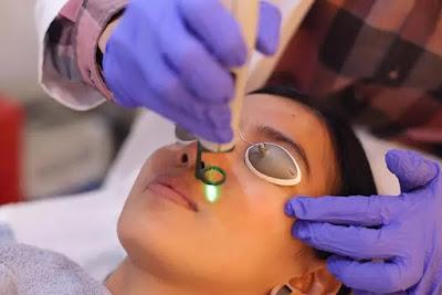 Cara Menghilangkan Jerawat dengan Terapi Laser dan Bedah