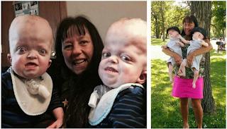 Γιαγιά 58 ετών υιοθετεί δίδυμα με σπάνια γενετική παραμόρφωση και αφιερώνει τη ζωή της ώστε να κάνει τη δική τους καλύτερη