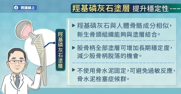 羥基磷灰石塗層提升穩定性