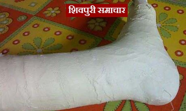 करबला में मिला कटा हुआ पैर, सनसनी | Shivpuri News