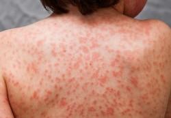 Kawasaki disease- कावासाकी वायरस और कोरोना वायरस से क्या सम्बन्ध है और कितना जानलेवा है ये देखे