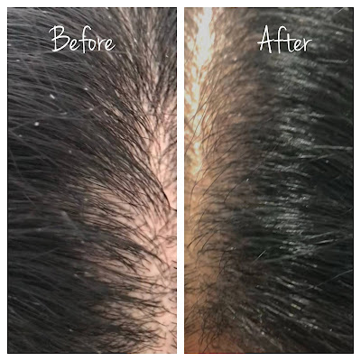 Scalp before and after