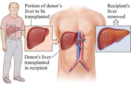 Obat Tradisional Hepatitis A Kronik