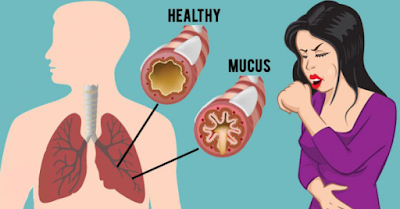How To Get Rid of Phlegm In Throat: 14 Home Remedies That Work