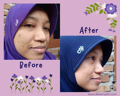 before-after-pakai-scarlett-anti-acne-series