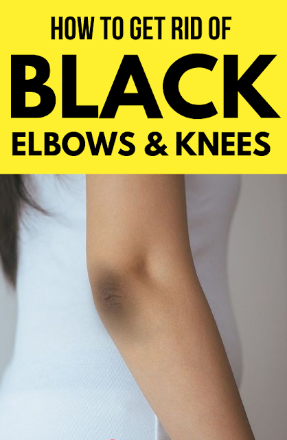 14 Home Remedies To Get Rid Of Black Knees And Elbow