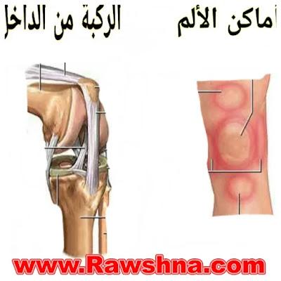 خشونة الركبة اسبابها وعلاجها