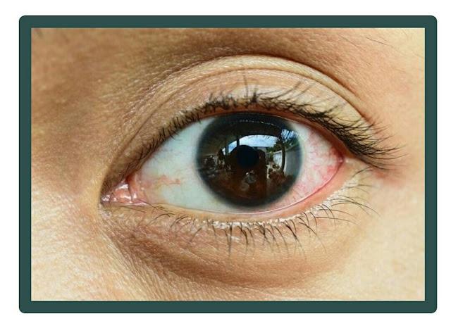 Cara Mengatasi Sakit Mata, Penyebab Sakit Mata, Lengkap disini!