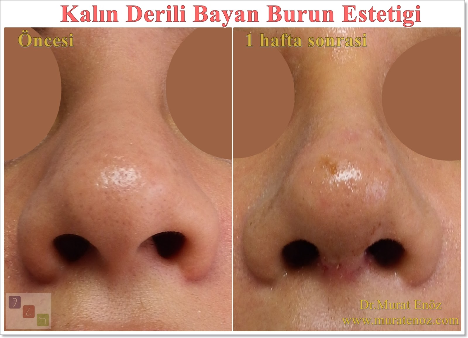 Taping After Rhinoplasty Is Effective For Swelling In Thick Skinned Patients