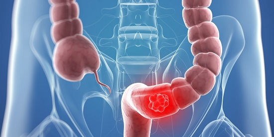 سرطان القولون أعراضه واسبابه وكيفية الوقاية منه
