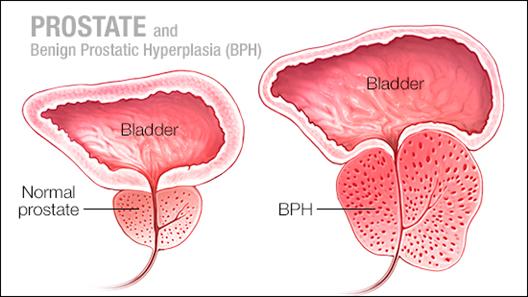 pembengkakak prostat