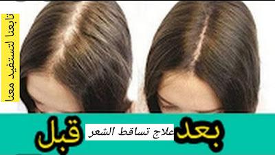 علاج تساقط الشعر ،خلطات للمنع تساقط الشعر نهائيا