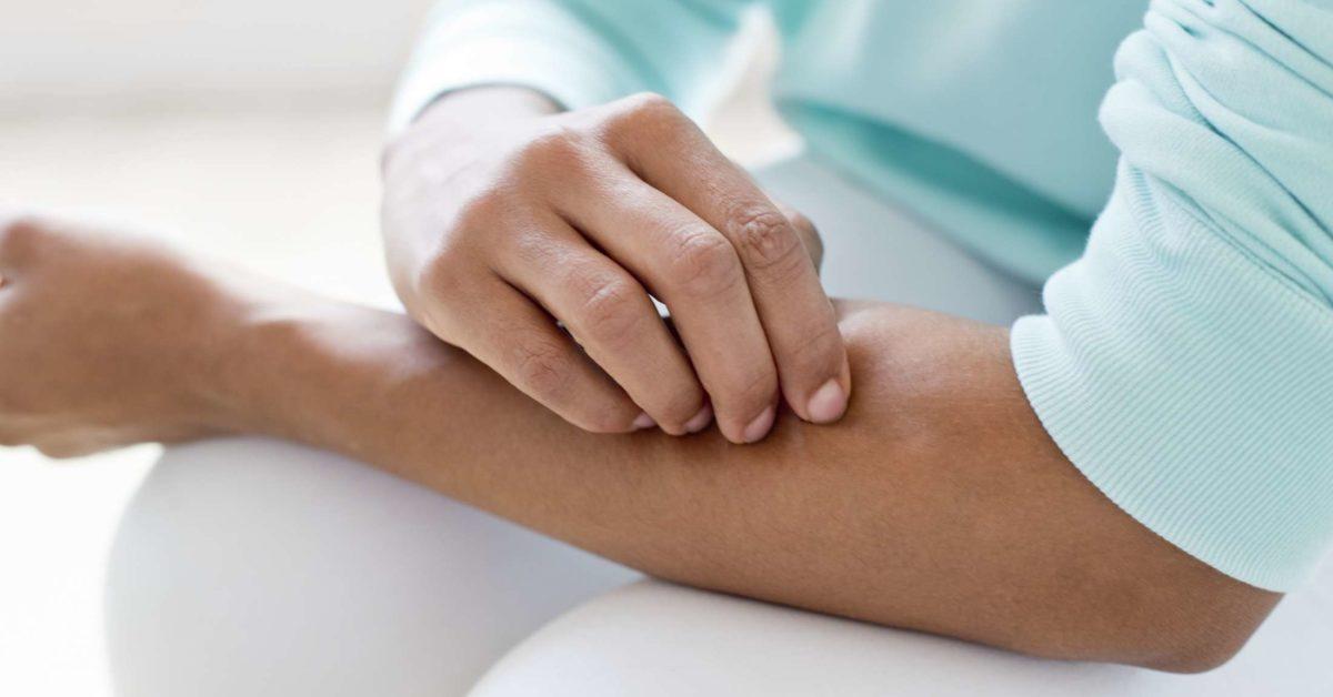 Kenali Gejala Infeksi Jamur pada Kulit dan Cara Mencegahnya