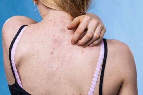 Tips to prevent skin disorders