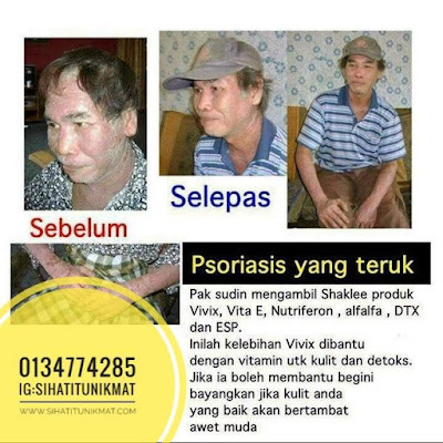 set psoriasis