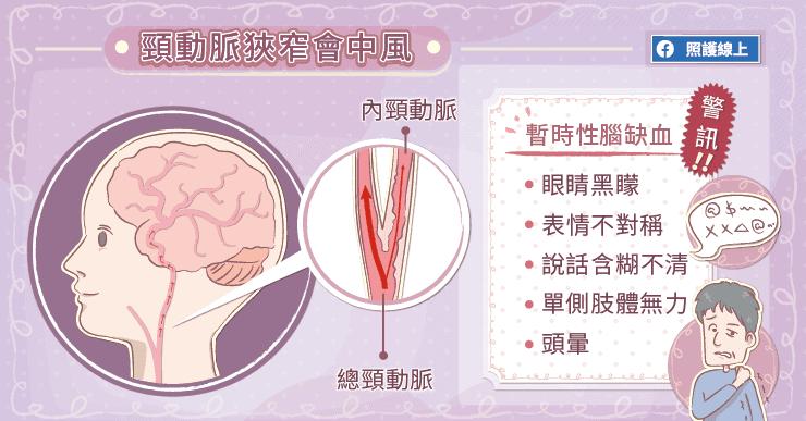 頸動脈狹窄造成中風