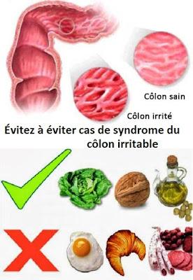Évitez ces aliments si vous avez le syndrome du côlon irritable