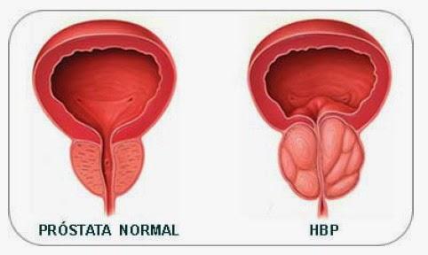 síntomas de infección de próstata de mayo
