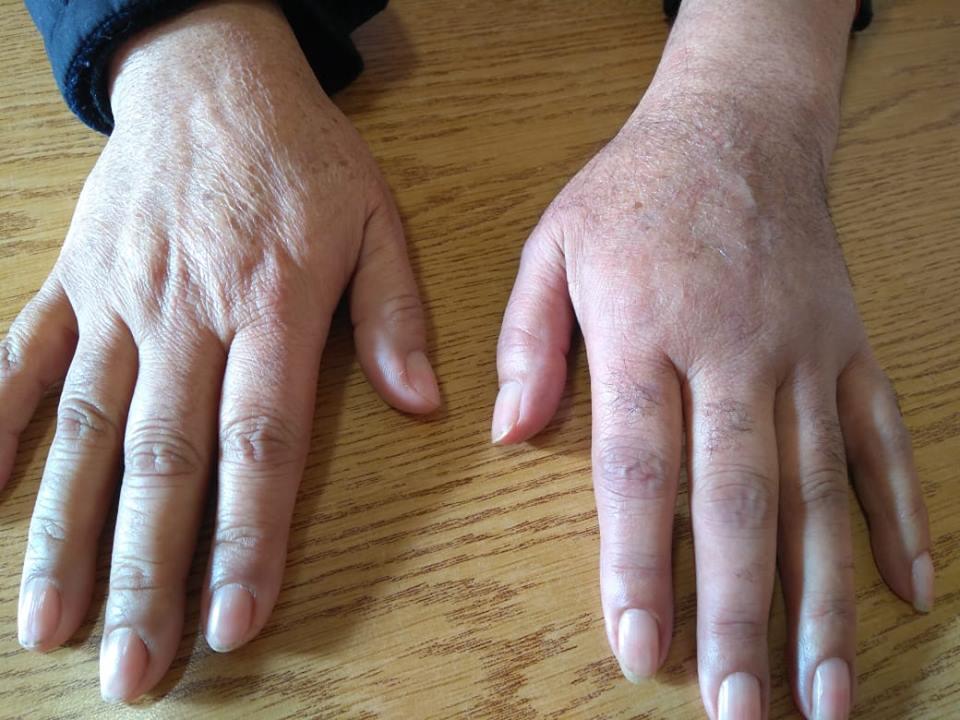sudeck s atrofia emedicina diabetes