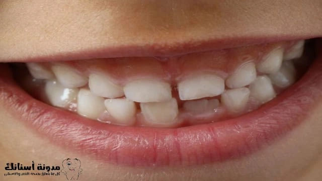 التسوس عند الأطفال - كيف نعالج التسوس في الأسنان اللبنية.