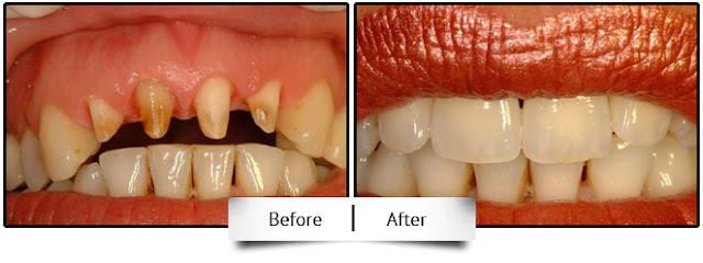 dental crown smile design