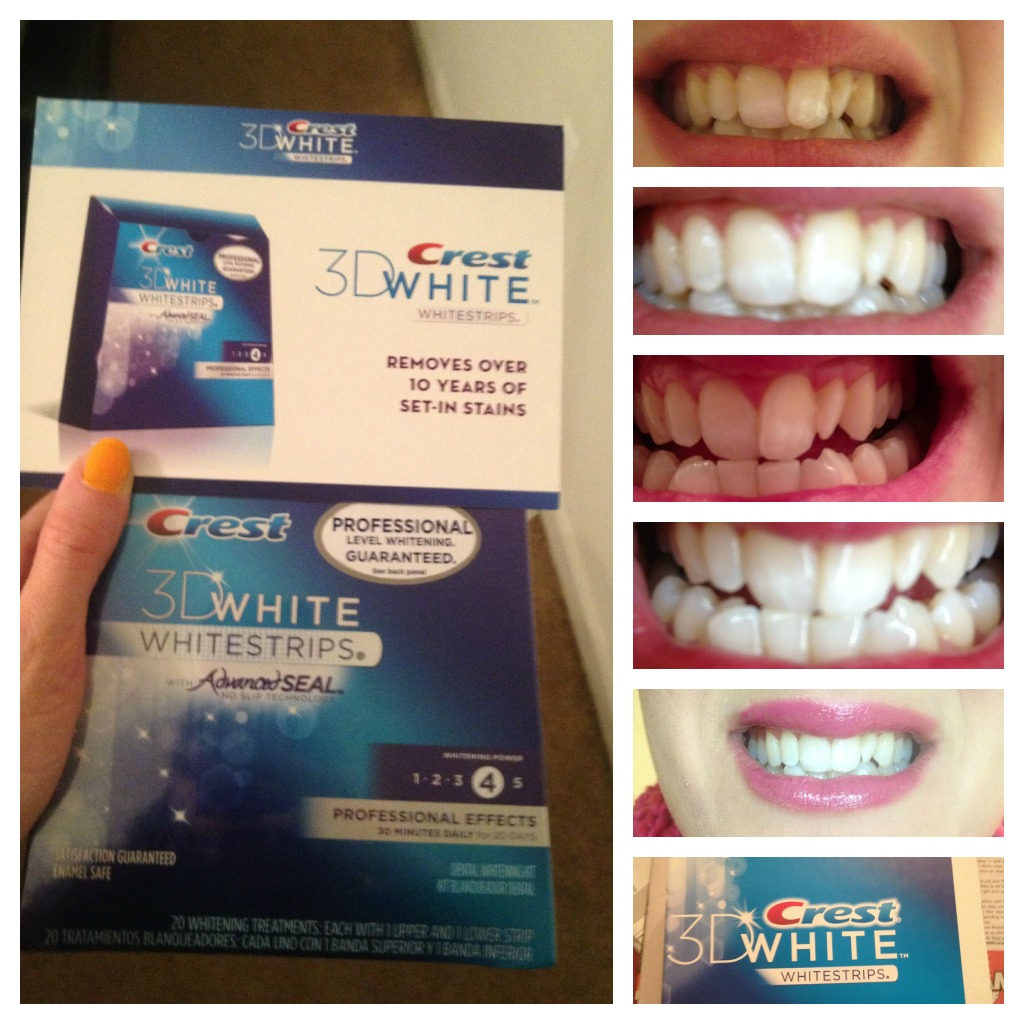 Amy Fashion: Crest 3D White Professional Effects Whitestrips