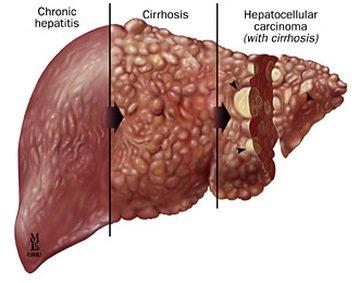 Obat Tradisional Hepatitis Kronik