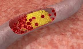 Cara ampuh mengobati kolesterol sampai tuntas