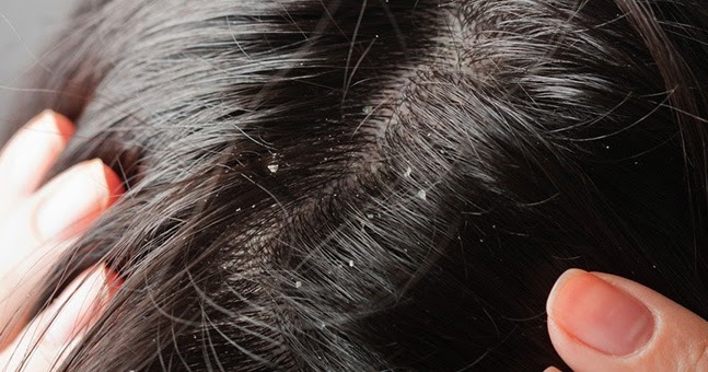 Home Remedies For Dandruff Reviews