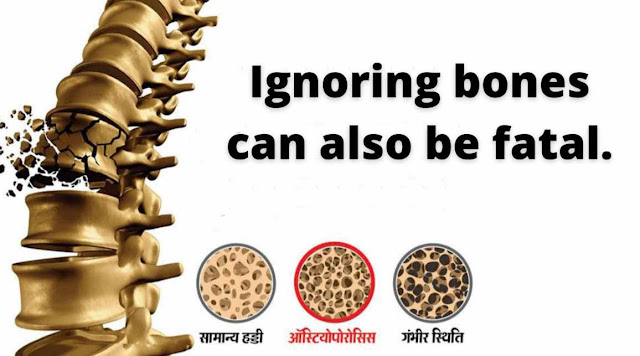Ignoring bones can also be fatal.