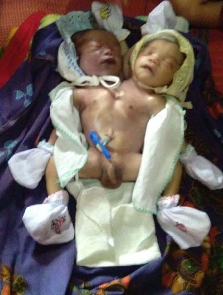bayi kembar siam