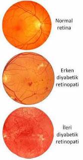 diyabetik retinopati