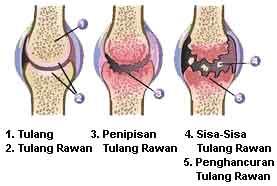 Cara menyembuhkan pengapuran tulang sendi lutut